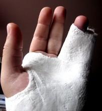 Broken_Fingers_4765 (21)